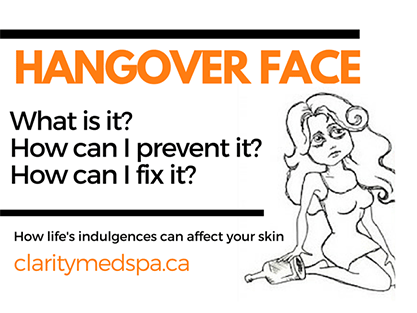 Helpful Tips to Improve Hangover Face!