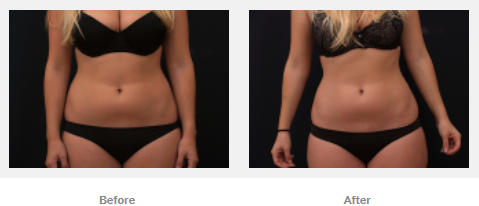 body shaping results