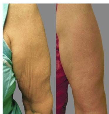 Before Amp After Photos Of Body Treatments Clarity Medspa