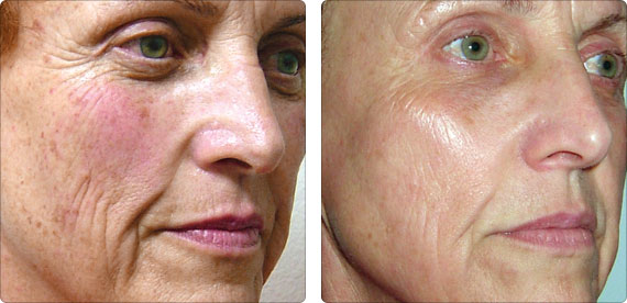 Photo Facial For Rosacea And Pigmentation Clarity Medspa
