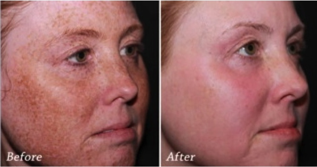 sun damage treatment