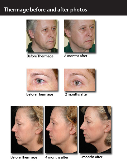 thermage results