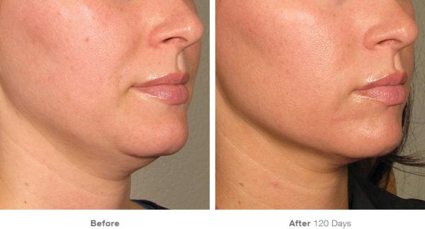 ultherapy lift jawline chin