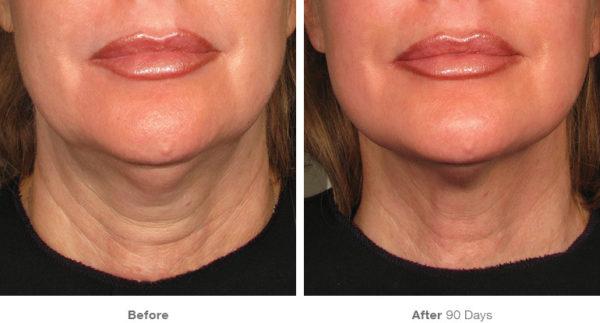 ultherapy neck & skin tightening