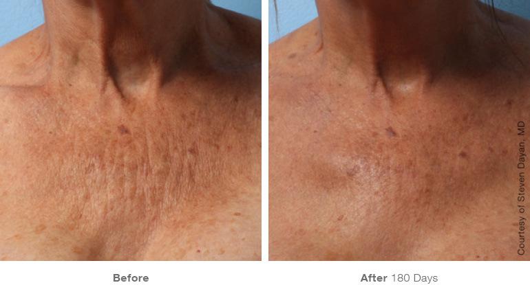 skin lift chest & decollate