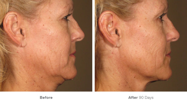 non surgical skin lift