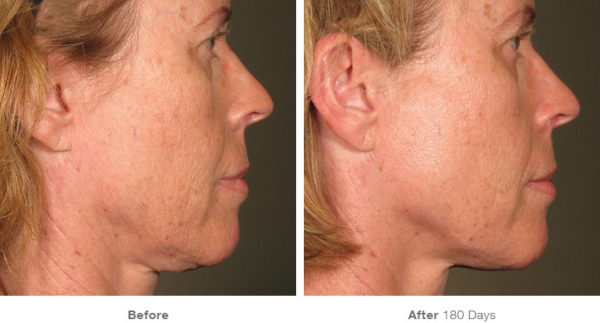 Ultherapy Non Surgical Skin Lifting Clarity Medspa