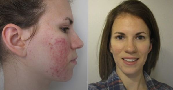 Teenage Acne is common but are there acne treatments that can help my skin clear-up?