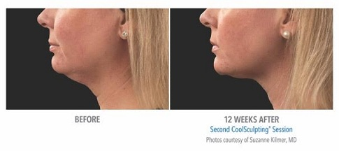 coolsculpting results at claritymedspa