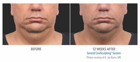 Coolsculpting Double Chin Toronto | Clarity MedSpa