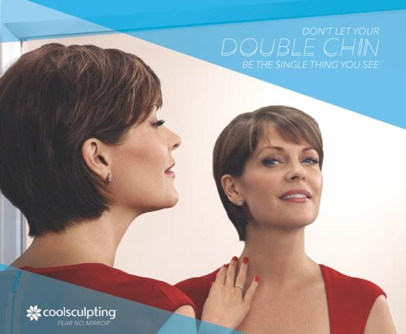 coolsculpting double chin