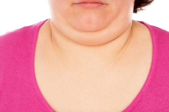 Getting Rid of a Double Chin before Your Wedding