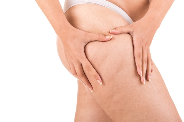 Cellulite Myths: The Truth about Stubborn Fat Deposits