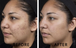 treating acne on face