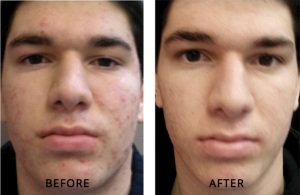 male acne treatment results