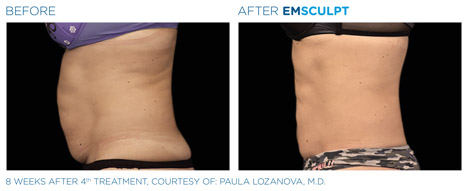 Before and After Emsculpt 1