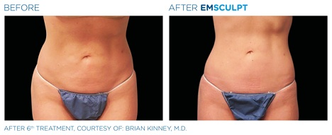 emsculpt before and after results