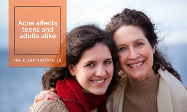 Acne affects teens and adults alike