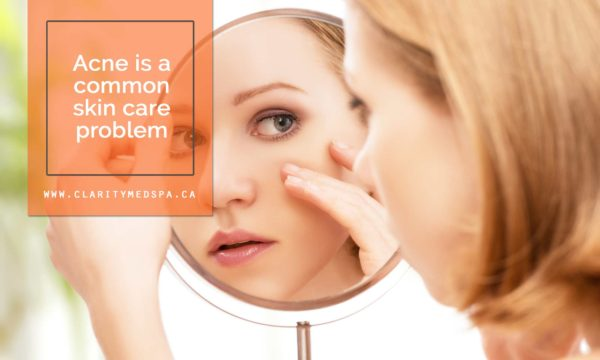 Acne is a common skin care problem