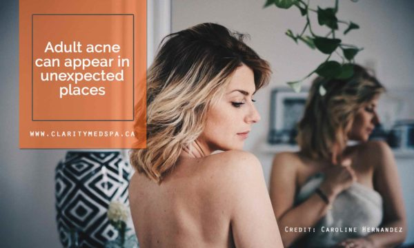 Adult acne can appear in unexpected places