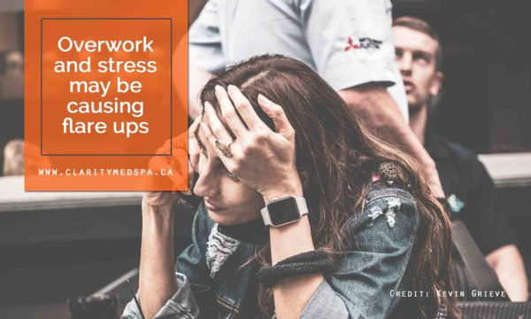 Overwork and stress may be causing flare ups