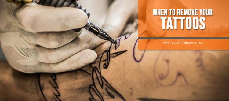 When to remove your tattoos