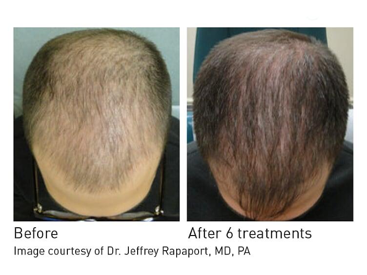 6 months treatment