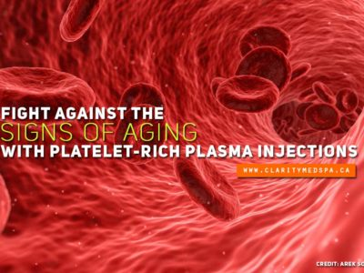 Fight against the signs of aging with platelet rich plasma injections
