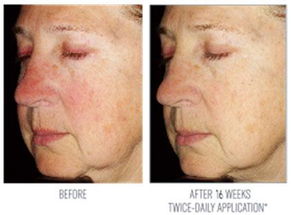 skin better health