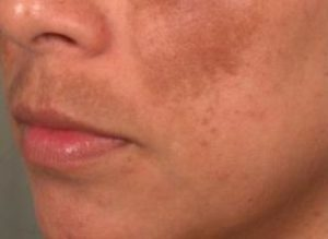 what is melasma
