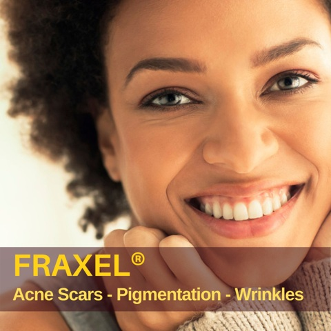 fraxel laser treatment toronto