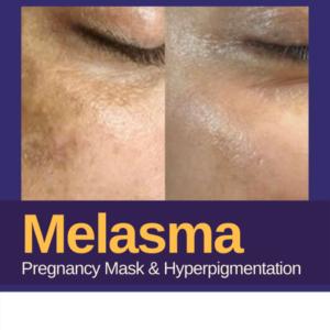 Melasma Pregnancy Mask and Hyperpigmentation