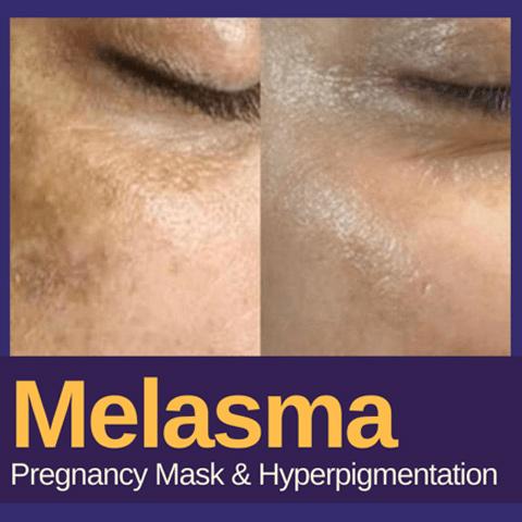 Melasma-Treatment