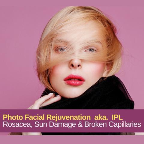 photo facial