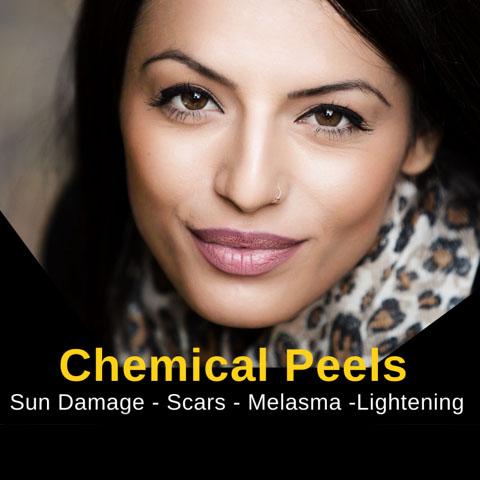 Chemicaal Peels