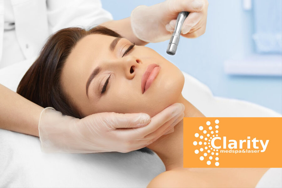 What Is the Microdermabrasion Process