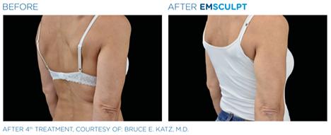Emsculpt arms, build muscle,