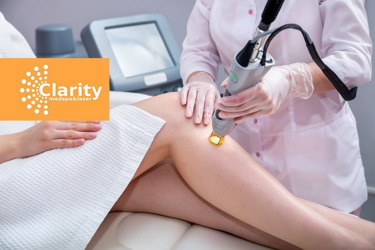 Am I A Good Candidate for Laser Hair Removal?
