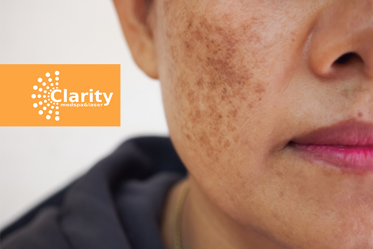 Got-age-spots-and-acne-scars-Try-Fraxel-Laser-Resurfacing