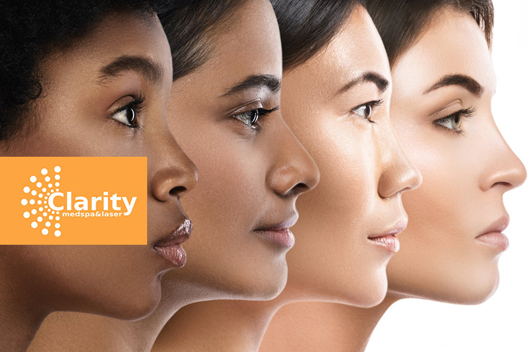 If you're not sure where your skin tone falls under the scale, call Clarity Med Spa now!